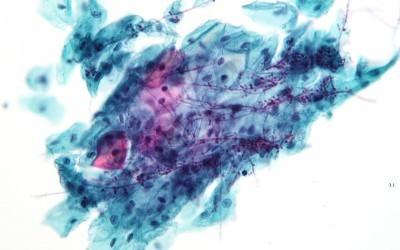 Candida albicans: Wissen zu Symptomen und mehr